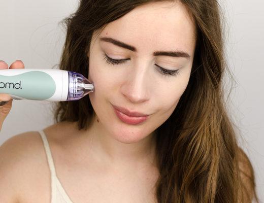 Was hilft gegen Akne-Microdermabrasion-PMD Microderm-Beautyblog-andysparkles.de